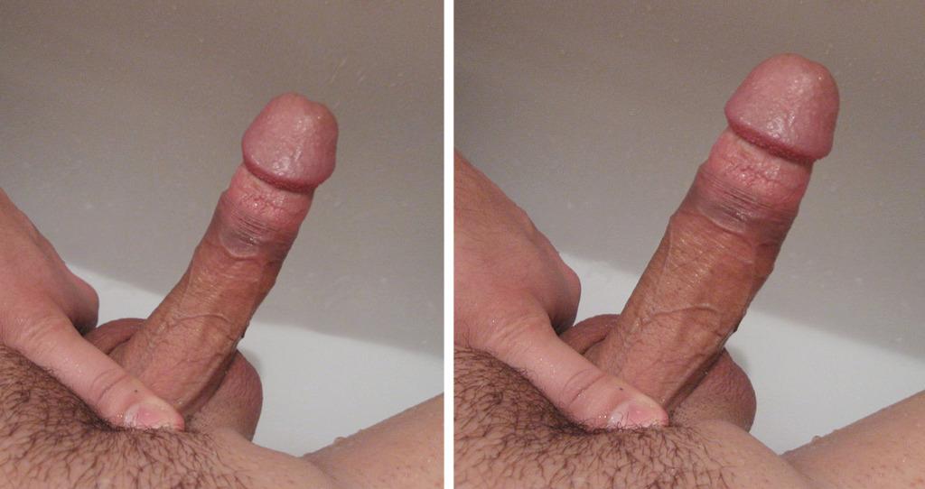 ჩამოტვირთვა videos უფასო penis გაფართოების